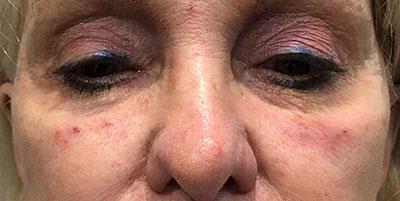 Tear Trough Filler After Photo of woman's eyes